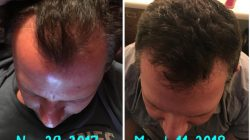 Regrow Hair Products – Before & After Pictures