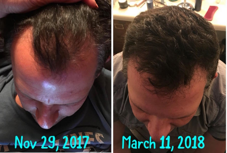 regrow hair before and after pictures