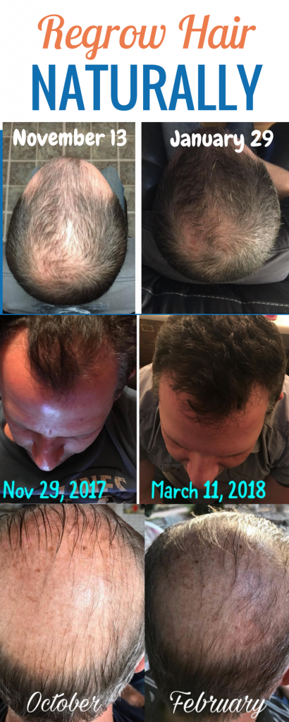 Regrow hair with REAL results. These natural hair growth before & after pictures show how this treatment works WITHOUT harsh chemicals. See what natural products these real men use to regrow hair. If you're looking to regrow hairline try this product line. sponsored #regrowhair #menshair #beforeandafter